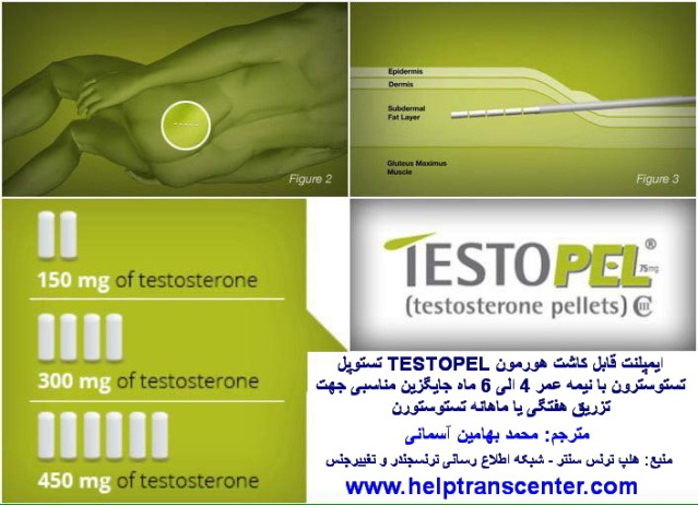 testopel (1) - Copy