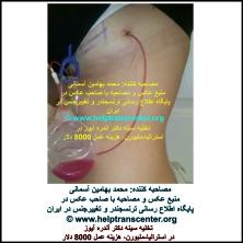 تخلیه سینه دکتر آندره آیوز در استرالیا-ملبورن، هزینه عمل 8000 دلار
