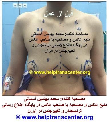 قبل از عمل تخلیه سینه