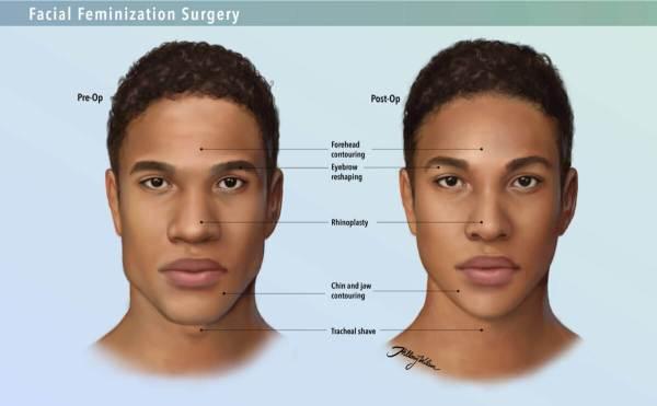 ffs-surgery