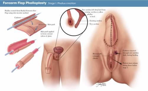 phalloplasty-1
