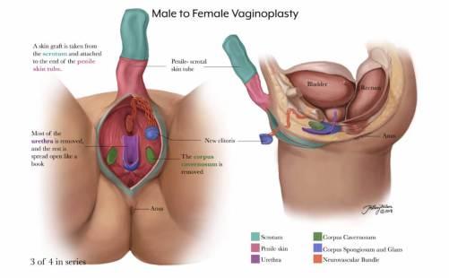 vaginoplasty-3