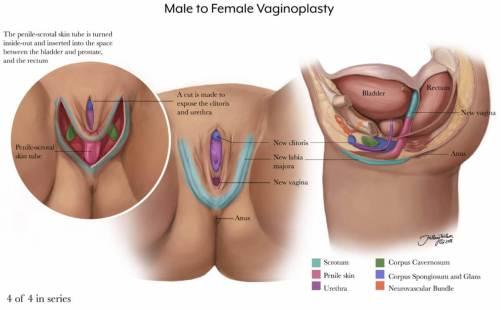 vaginoplasty-4