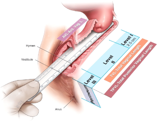 Vaginal-Levels-I-to-III-and-Vaginal-lengths-Anterior-Total-Total-Posterior-C