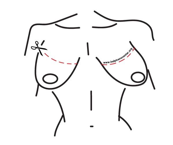 عمل تخلیه سینه
